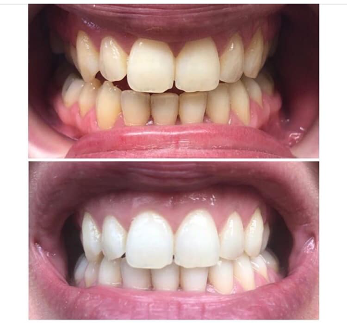 Teeth Whitening with White Wash